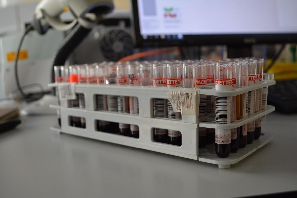 Bezpłatne i anonimowe badania wirusa HIV. Nowy punkt konsultacyjno-diagnostyczny w słupskim szpitalu