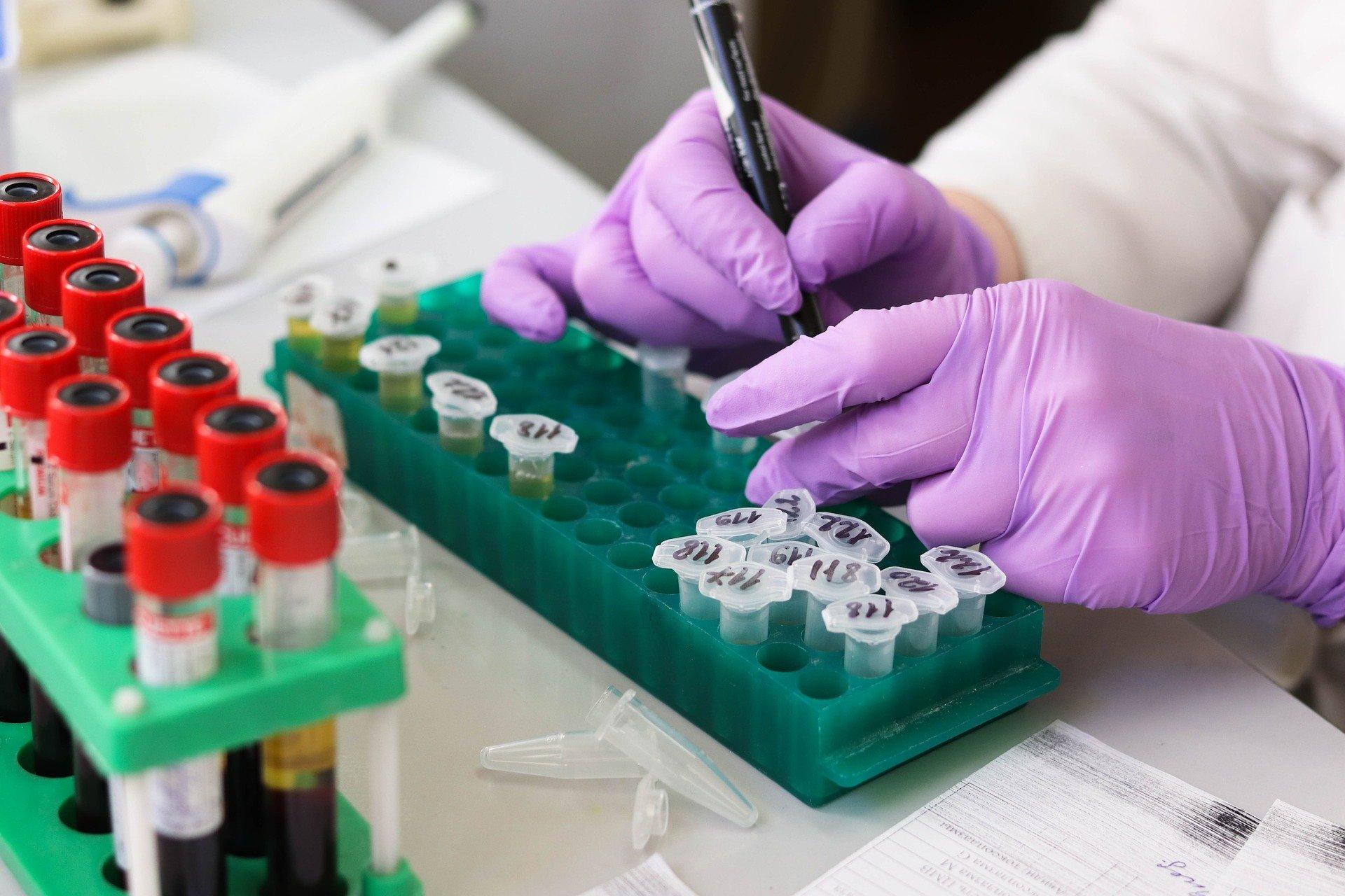 """Lekarz: """"Nie każdy powinien mieć wykonany test w kierunku koronawirusa"""". Co trzeba wiedzieć o tych badaniach?"""